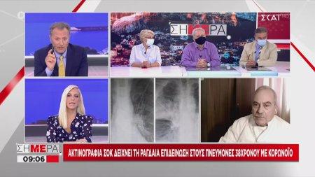 Βασιλακόπουλος: Ο κορωνοϊός έχει μακροχρόνιες επιπτώσεις στους πνεύμονες